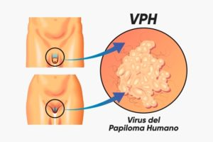 como detectar virus papiloma en hombres)