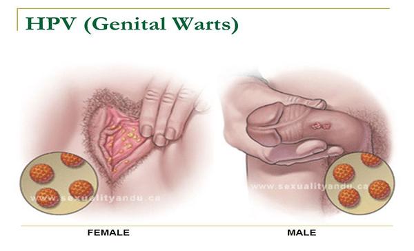 hpv warts description