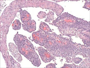 squamous papilloma of bladder)
