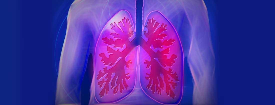 durerea in cancerul de plamani