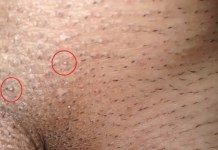 hpv do warts go away)