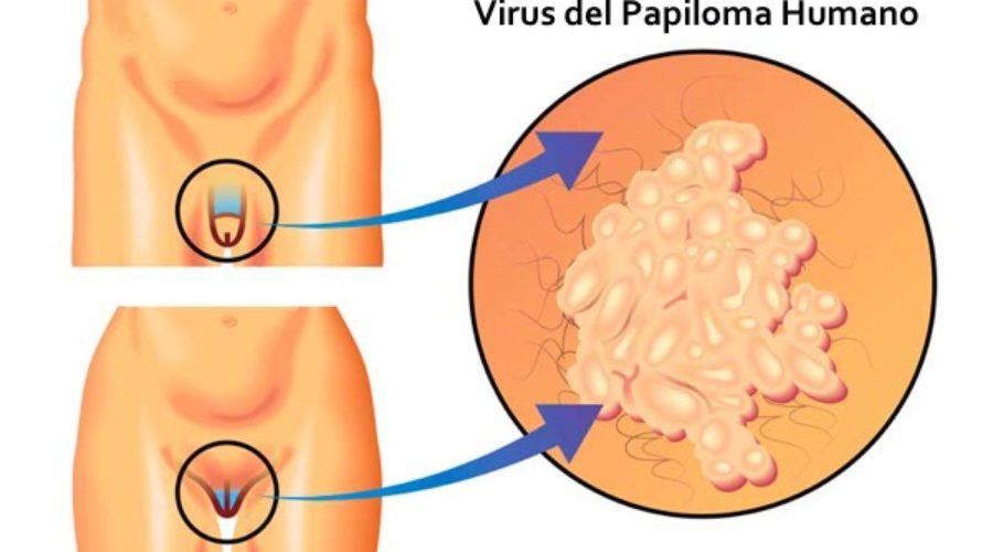 Papiloma genital en ingles