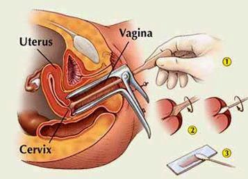Esame per papilloma virus uomo - info-tecuci.ro