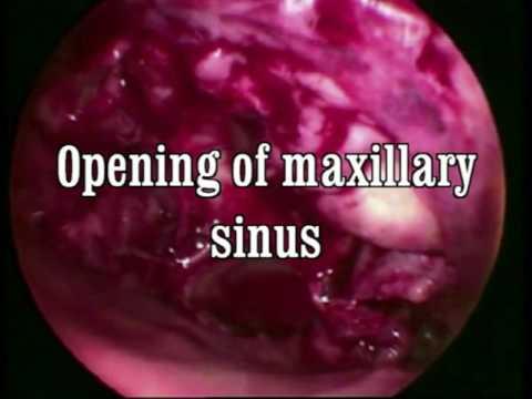Inverted papilloma removal Maxilectomia maxilară medială pentru papilomul inversat