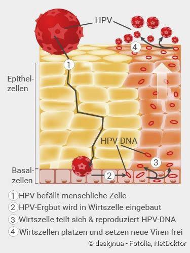 hpv viren behandlung beim mann