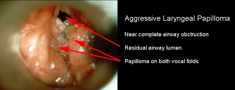 laryngeal papilloma causes