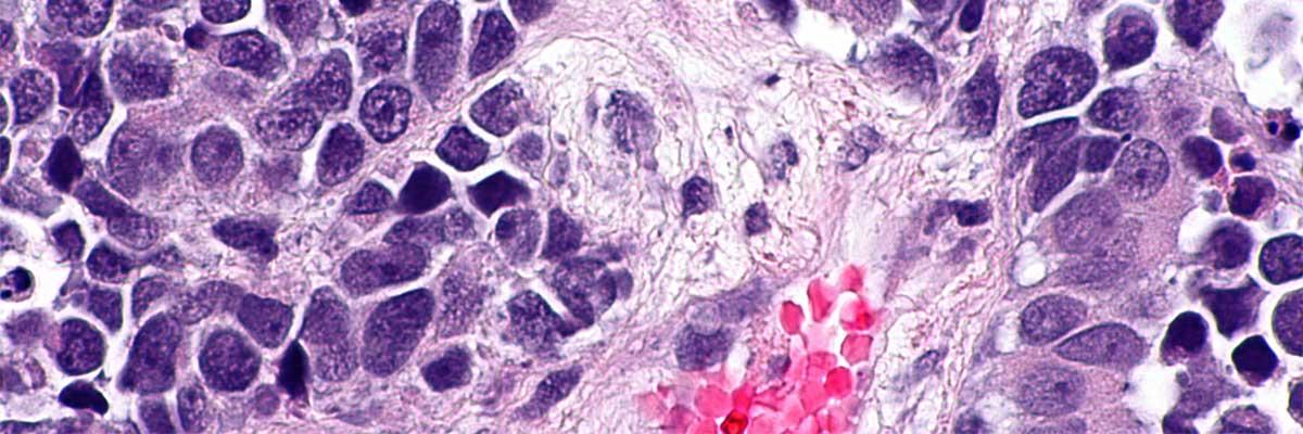 Cancer de vezică: simptome care ar trebui să ne aducă la doctor