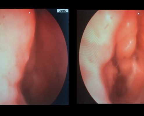 Papilloma invertito nasale, Viermi emerge din anus Papilloma nasale immagini