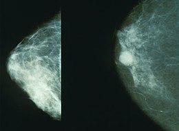 cancer maligne mammaire)