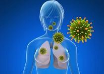 cancer la plamani celule mici)