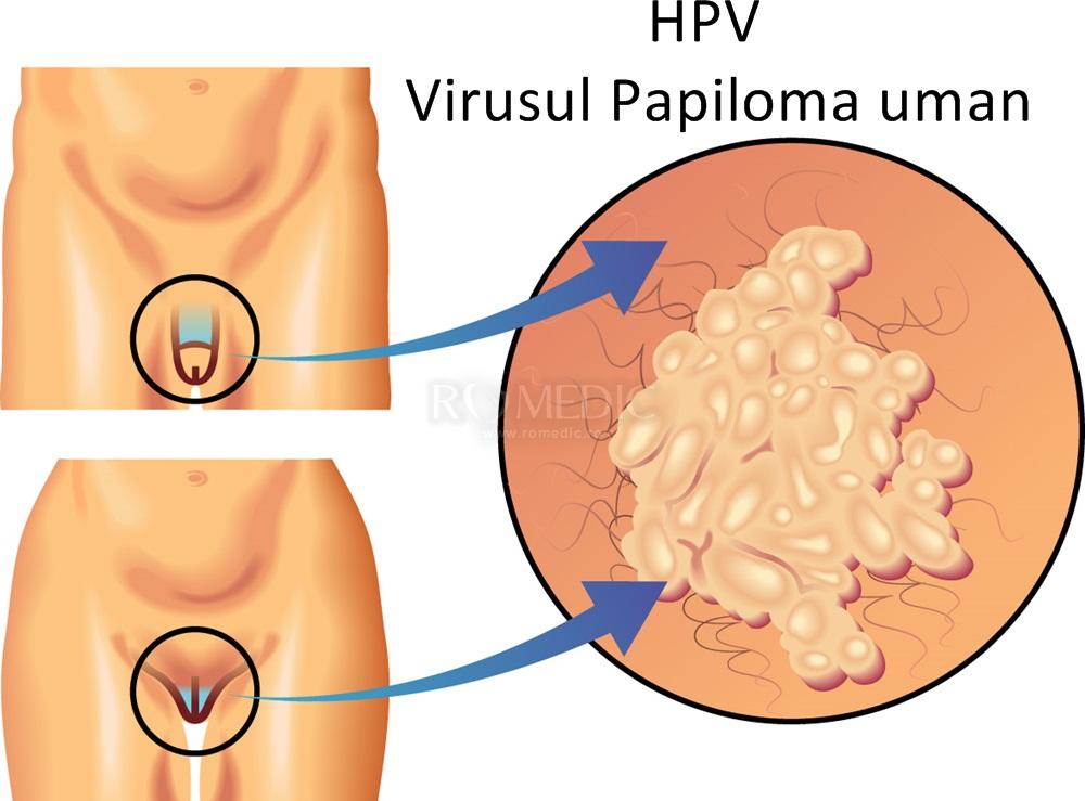 cum să vindecăm papilomavirusul uman)