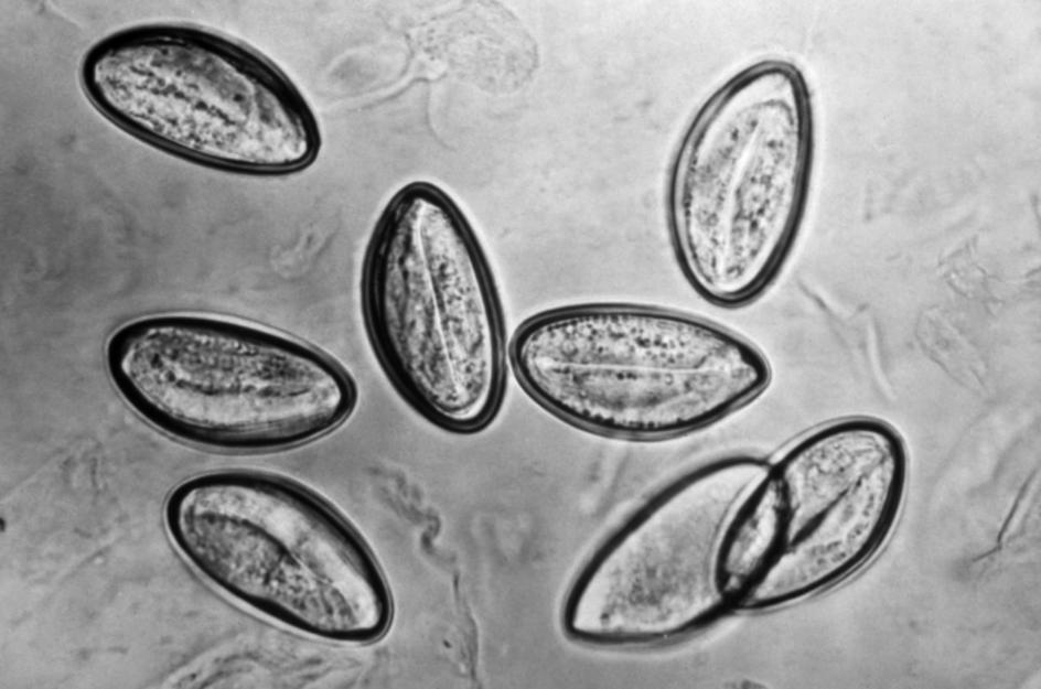 Oxiuroza (Enterobioza) - Que es oxiuros en biologia