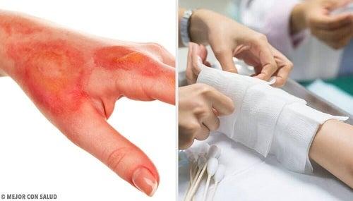 tratamentul arsurilor între degete)