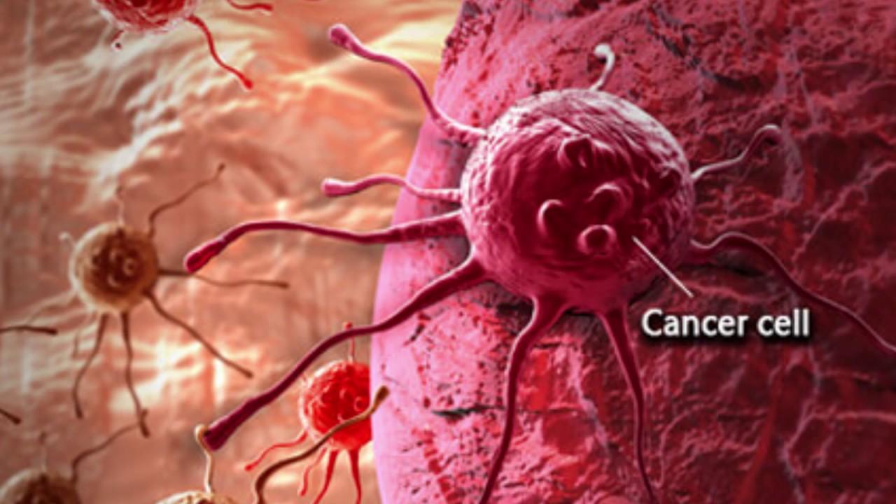 Cancerul colorectal poate fi vindecat daca este depistat precoce | info-tecuci.ro
