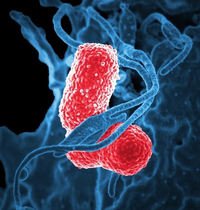bacterii de fermentatie)