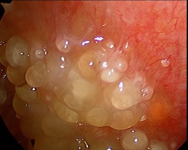 cancer of peritoneal cavity paraziti kod macke