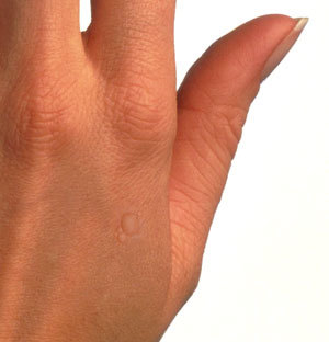 virus del papiloma manos