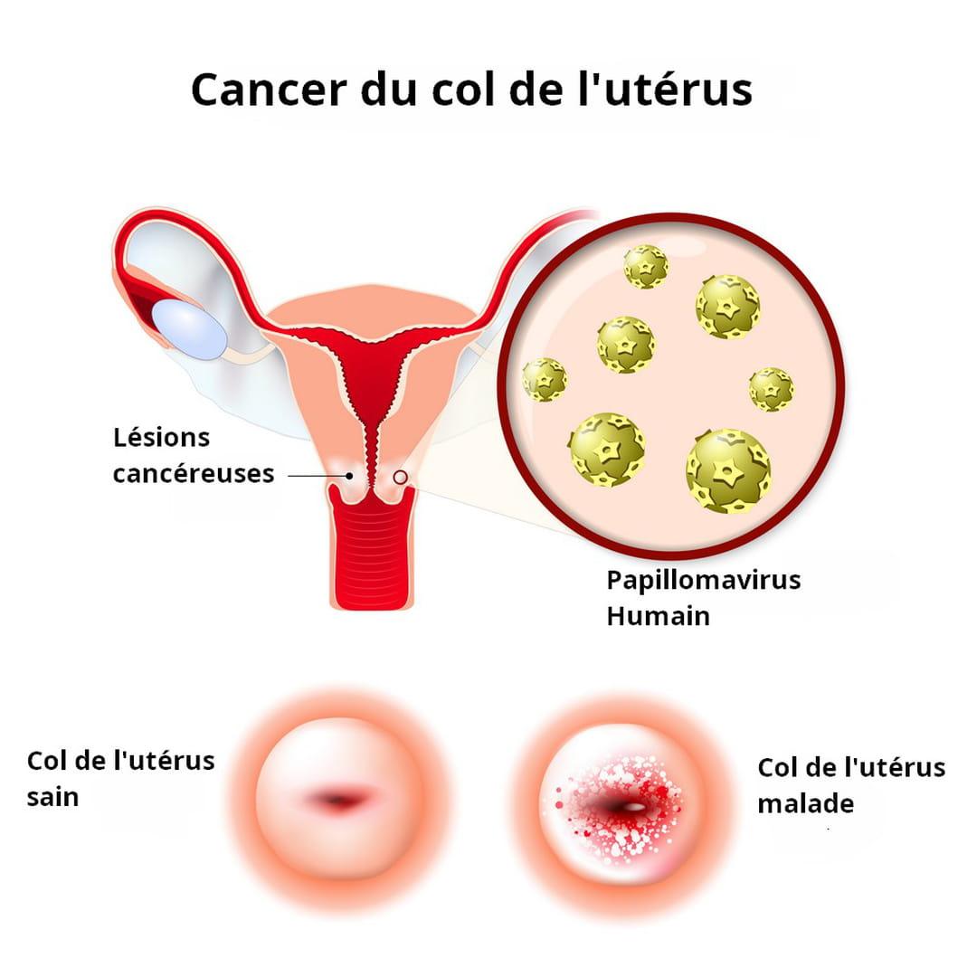Lesion hpv traitement, HPV Condylomes témoignage du traitement naturel hpv wart pregnancy
