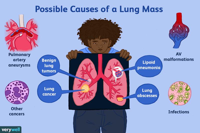 helminti în tratamentul pulmonar