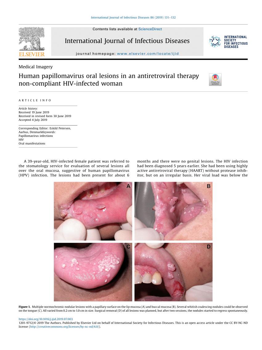 human papilloma lesion