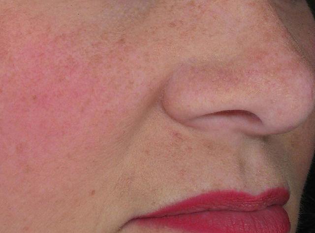 cum arată viermele acnee la o persoană?