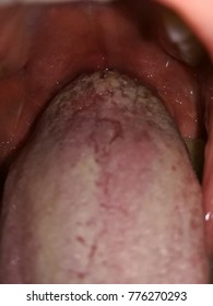 warts on tongue and throat)