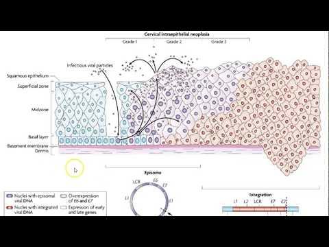 Hpv uomo e gravidanza - What causes laryngeal papillomas