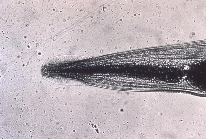 enterobius vermicularis objawy tratamentul papilomului cu unde radio