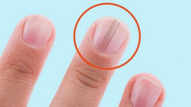 cancerul unghiei)