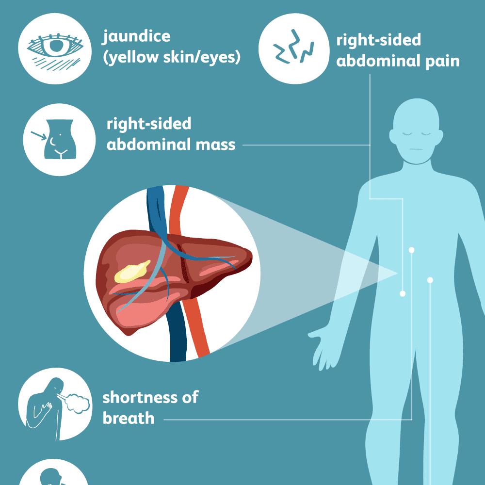 cancer abdominal pain treatment)