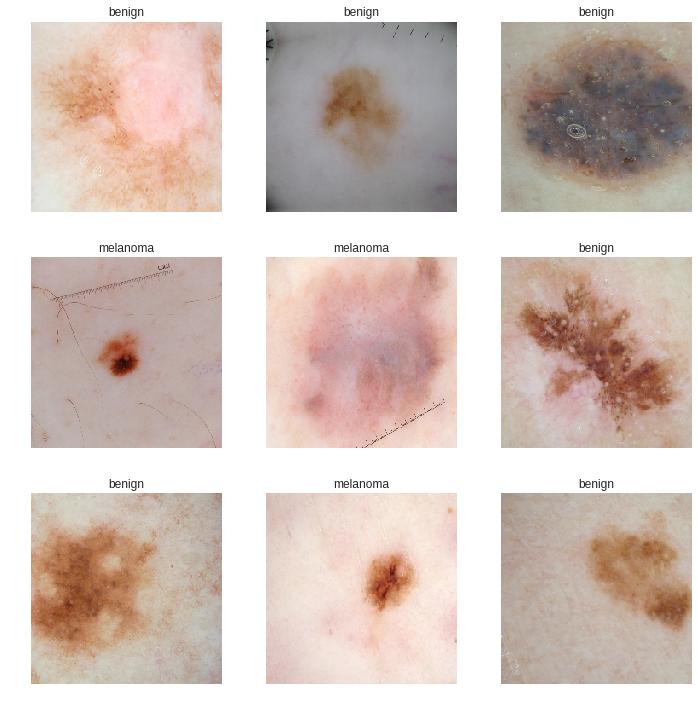 cancer benign skin