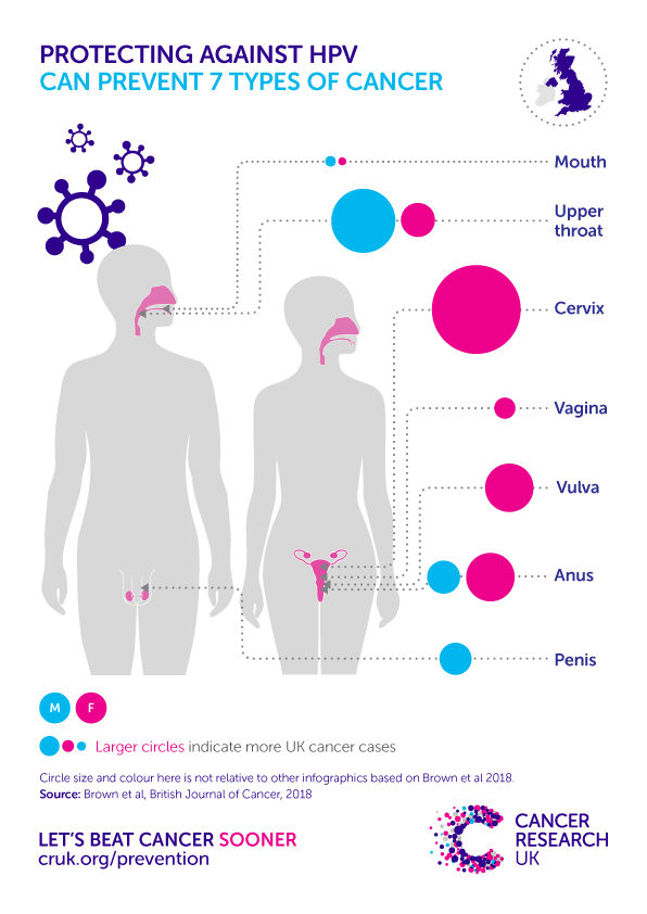 cancer caused by hpv in males