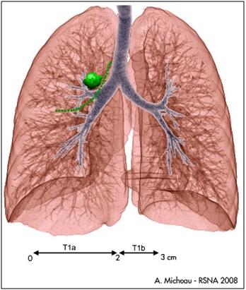 cancer colon nodule poumon)