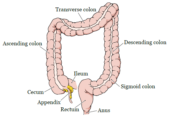 cancer colon resection