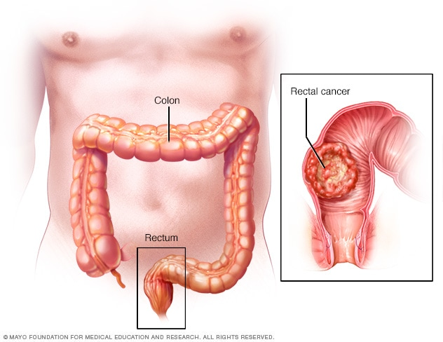 Cancer colon definition