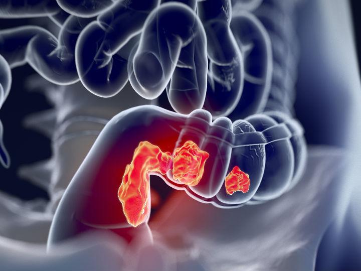 Cancer de prostata historia natural, Свежие записи