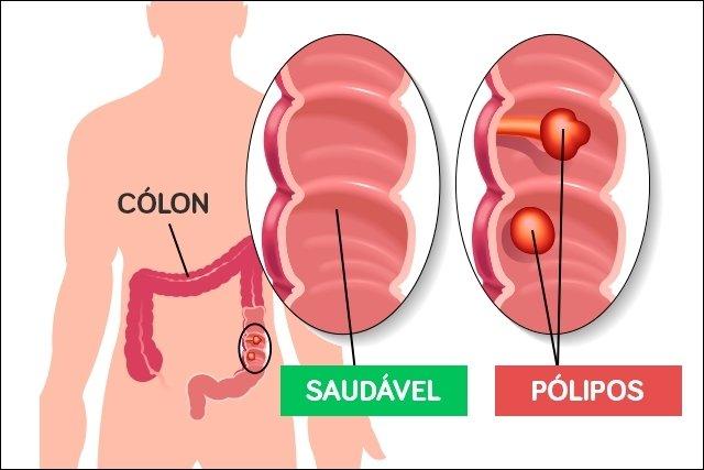 cancer de colon em jovens