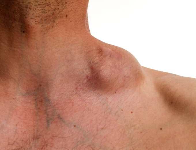 Cancer prostata sintomas iniciales