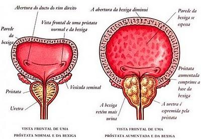 Cancer de prostata qual sintomas