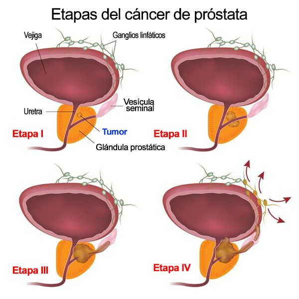 cancer de prostata fases)
