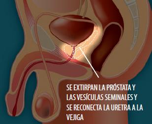 cancer de prostata que organos afecta