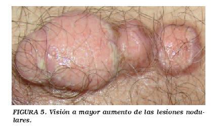 cancer de uretra masculina sintomas)