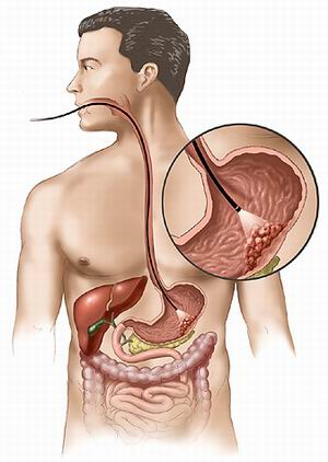 cancer gastric cauze)