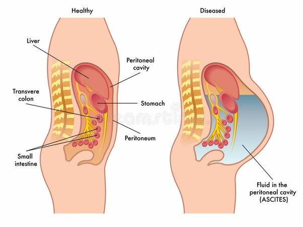 cancer intra abdominal)