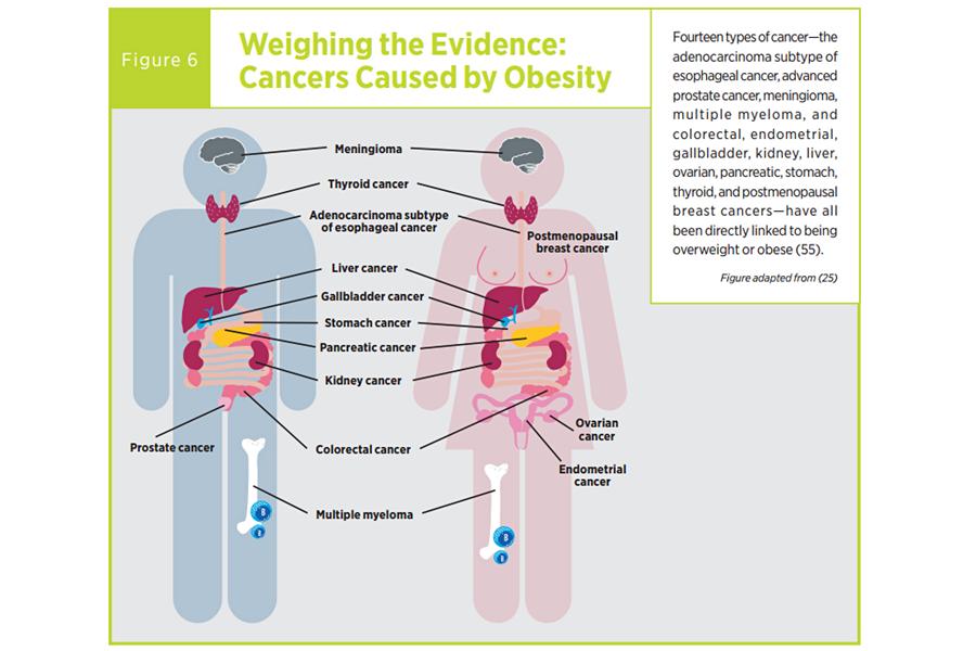 cancer laringian regim alimentar)