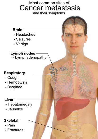 cancer limfatic in ultima faza viermii pot provoca vărsături la un copil