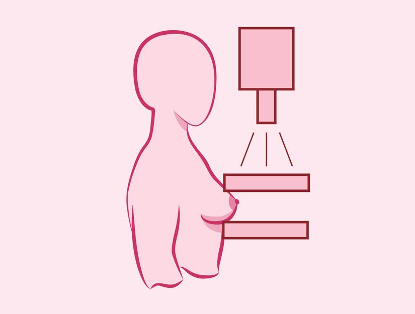 cancer mamar anadolu medicamente antihelmintice complexe pentru oameni