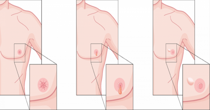 cancer mamar barbati detoxifiere ficat cu patrunjel si lamaie