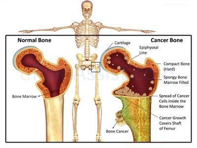 Prostate Cancer and Bone Metastasis | info-tecuci.ro