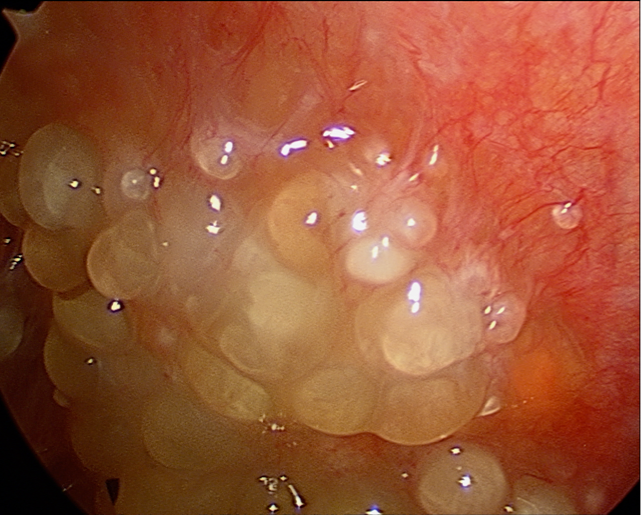 cancer of peritoneal cavity hpv throat issues